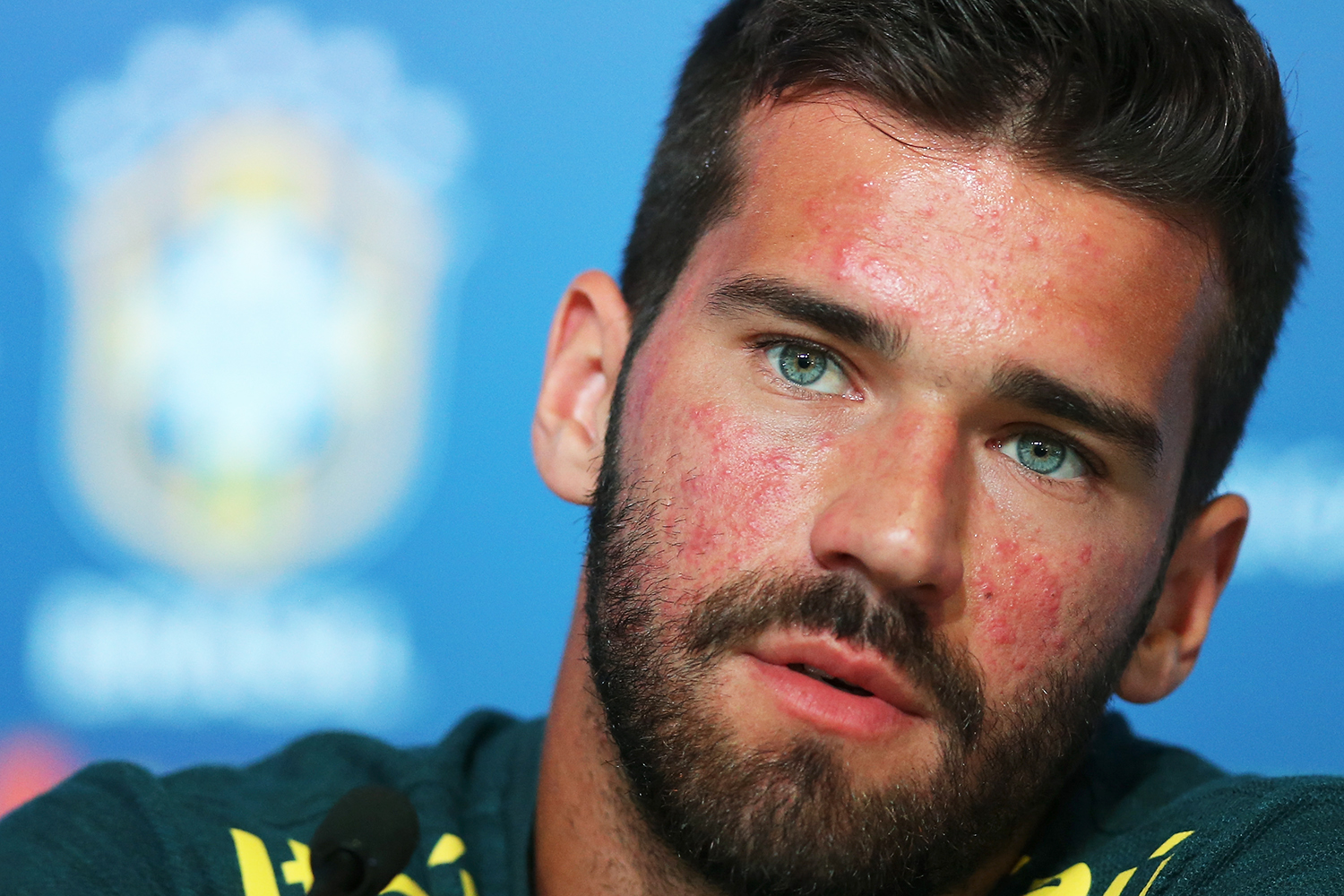 Alisson-Becker-Acne-Closeup