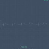 Ios o2ring heart monitor